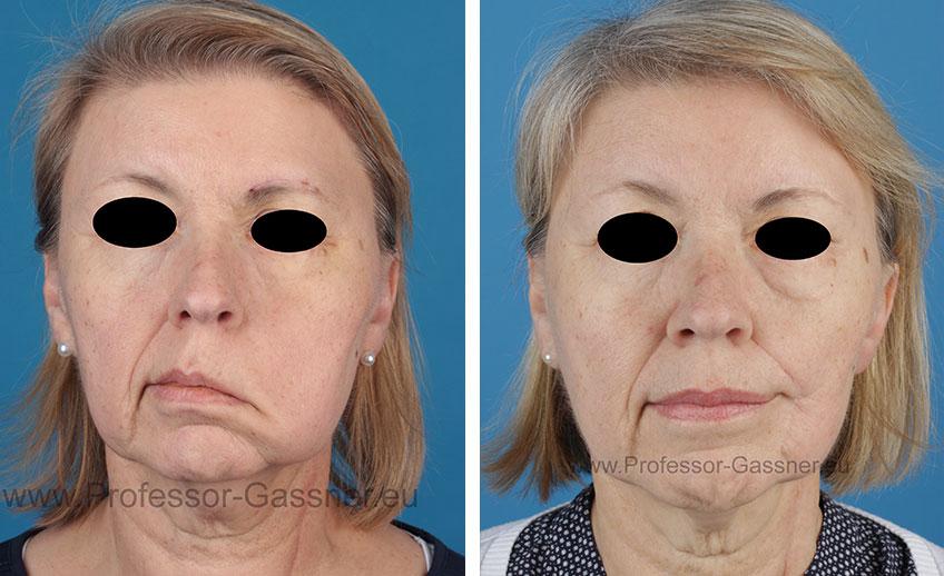 Gesichtsnervenlähmung Gassner