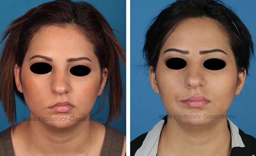 Gesichtsnervenlähmung 2
