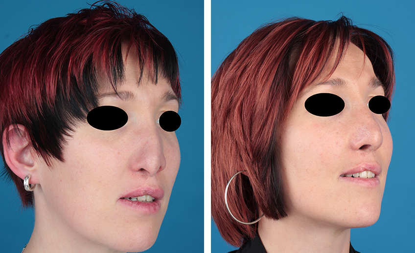 Nasenkorrektur Spaltnase