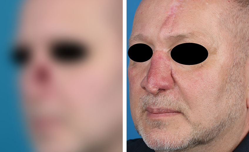 Nasenrekonstruktion Gassner